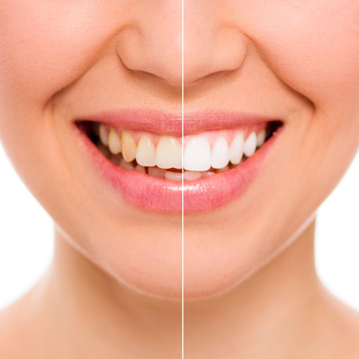 セラミック治療により虫歯再発リスクを最小限に抑える!