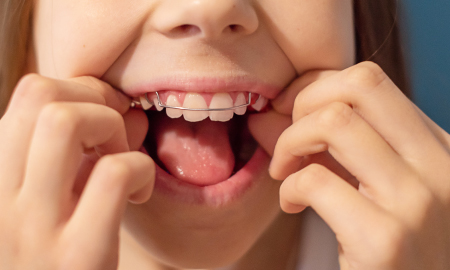 歯周病ウイルス
